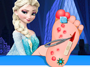 Online game Elsa Foot Surgery