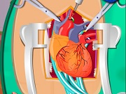 Online game Heart Surgery