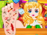 Princess Foot Surgery